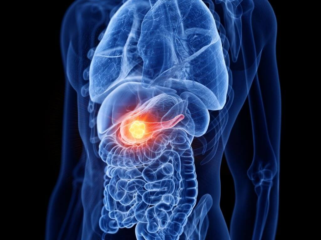 What-Are-The-Symptoms-Of-Pancreatic-Cancer-In-A-Woman-2
