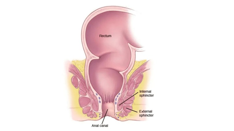 What Is Anal Cancer? Types , Symptoms, And Treatment