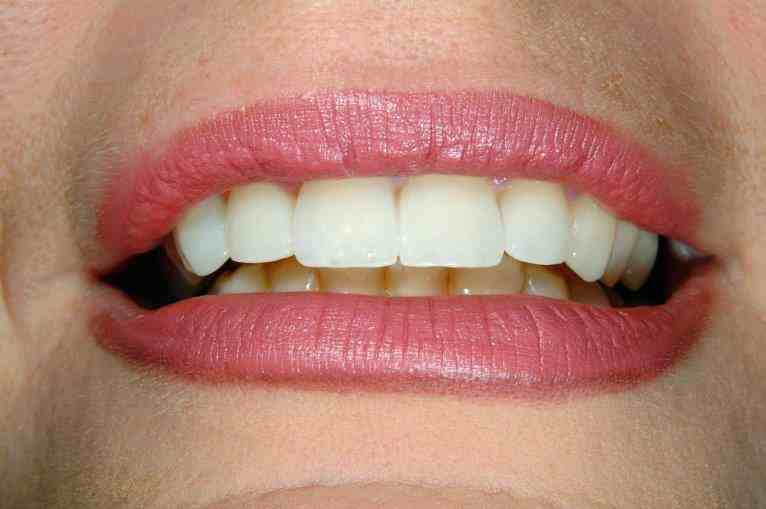 Simply Veneers Smile Makeover 3 After
