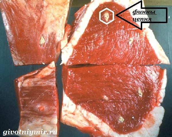 Teniasis biohelminthiasis