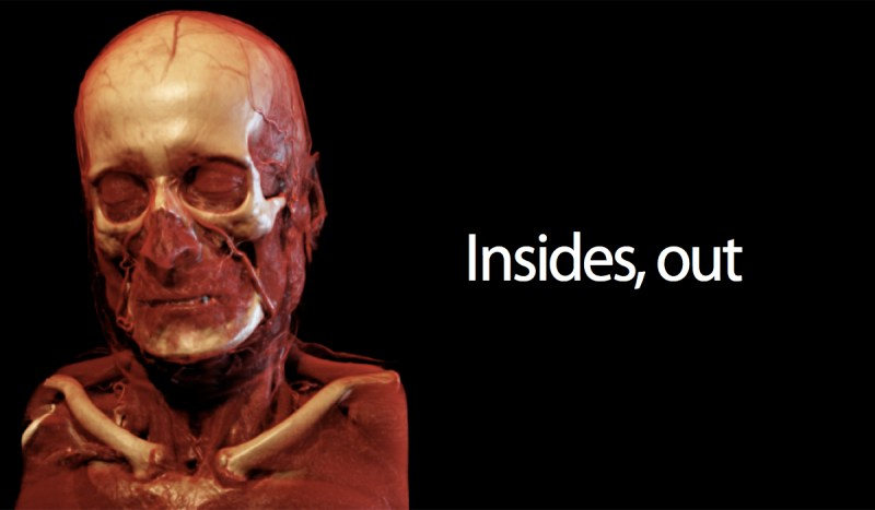 Insides, Out.