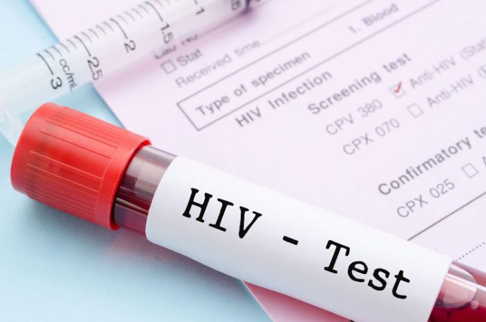 Doctor Allegedly Poisons Colleague's Water With Hiv Blood