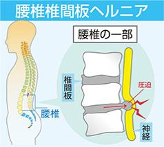腰椎椎間板ヘルニアの図