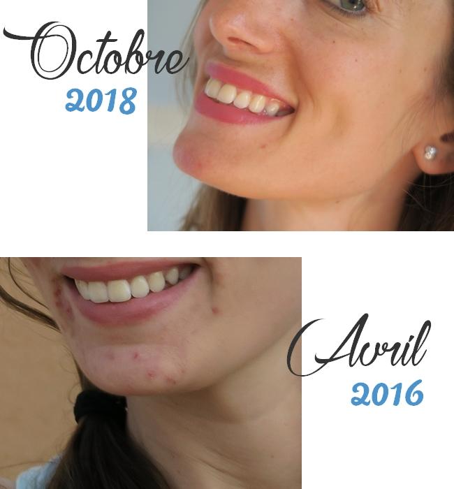 27f18a14ed9 Acné et microkystes   la solution naturelle qui a sauvé ma peau