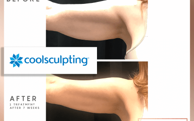 Liposuction or CoolSculpting?