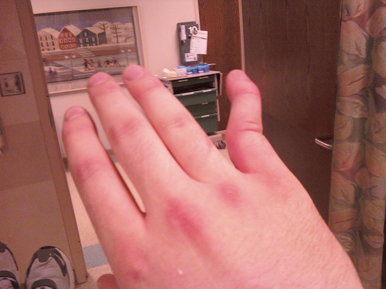 dislocated, broken pinky finger
