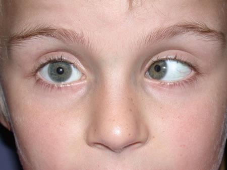 látásélesség kornorma asztigmatizmus tiszta látással