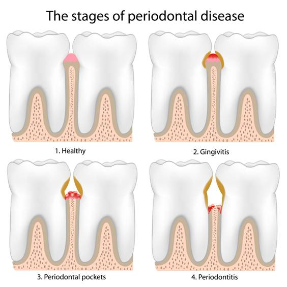 Gum treatments - the stages of periodontal disease