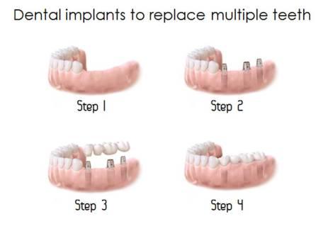 Denta implants to repace multiple teeth