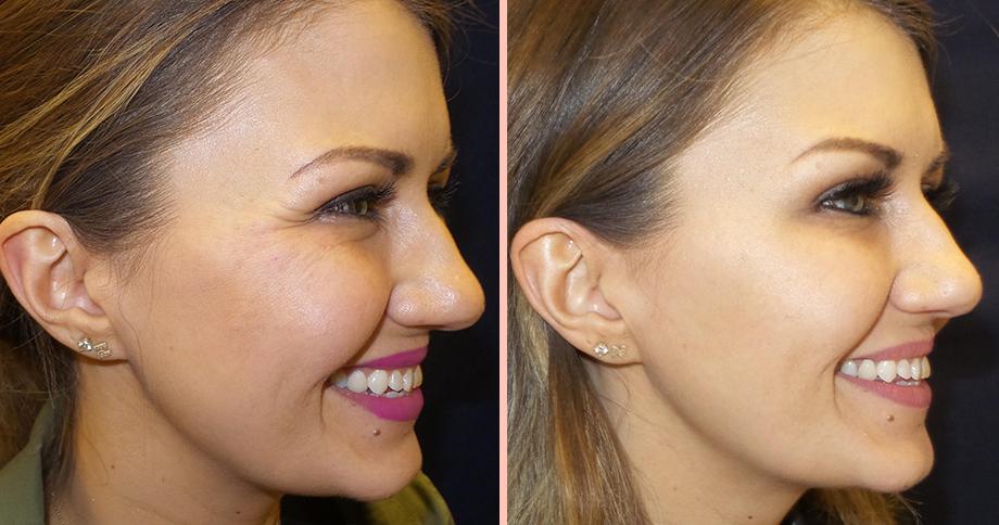 Botox at Pinski Dermatology
