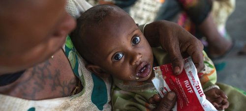 A one-year-old boy is treated for malnutrition at a health centre in the Tigray region of northern Ethiopia.