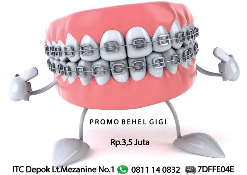 behel-gigi