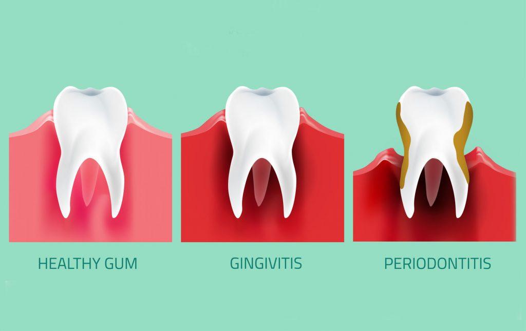 Manfaat Dari Flossing Untuk Gigi Dan Gusi- Global Estetik Dental Care