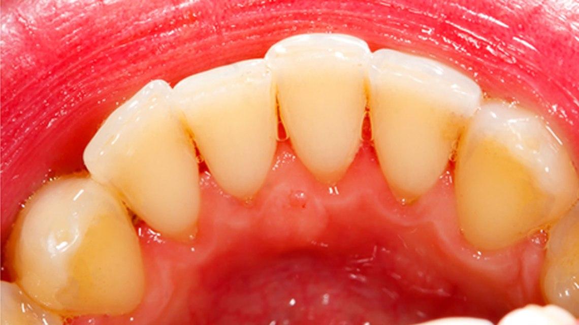 pembersihan gigi profesional