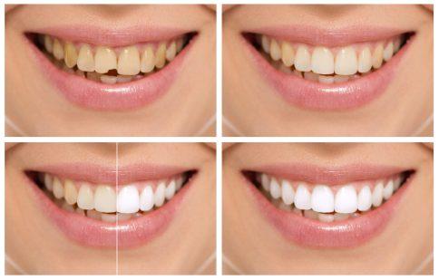 Bahayanya Proses Whitening- Global Estetik Dental Care