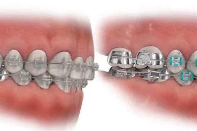 klinik gigi jakarta cara merawat gigi behel agar tidak bau