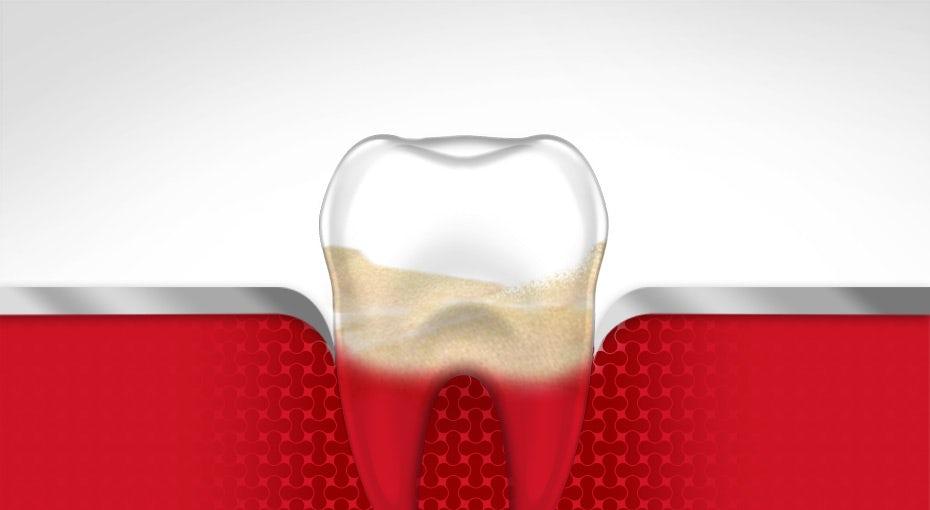 klinik gigi depok gusi berdarah