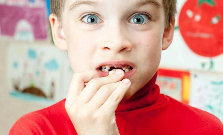 klinik gigi depok gigi anak rusak