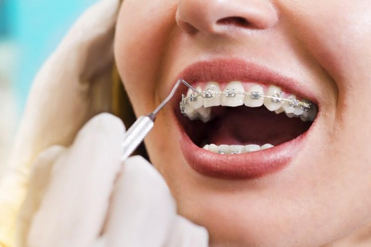 pasang behel dokter gigi bandung