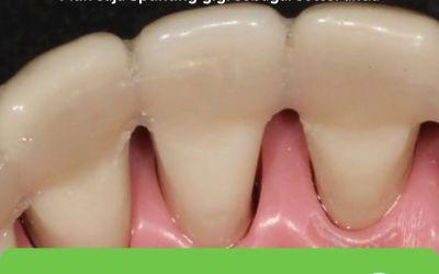 Splinting gigi depok