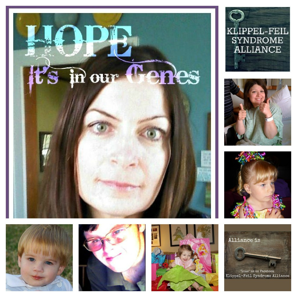 klippel feil syndrome alliance launched by kfs patient advocate, Skeleton