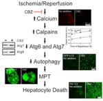 Carbamazepine suppresses calpain-mediated autophagy impairment after ischemia/reperfusion