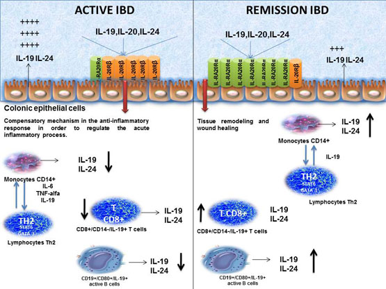 Expression of interleukin (IL)-19 and IL-24 in inflammatory bowel disease patients: a cross-sectional study.. Global Medical Discovery