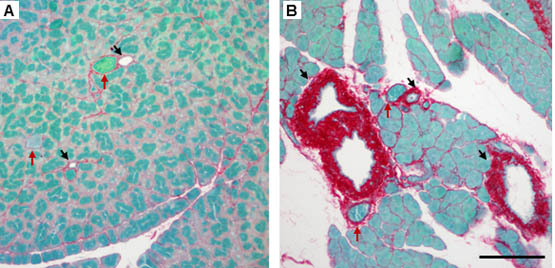 Pharmacological attenuation of chronic alcoholic pancreatitis induced hypersensitivity in rats copy