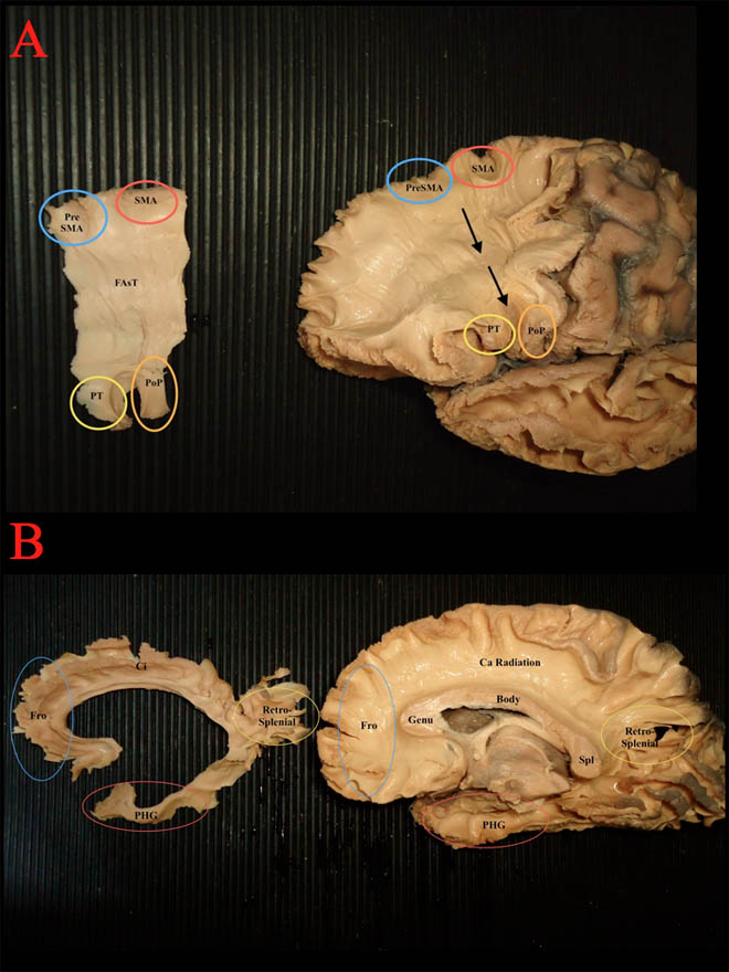 The use of a cerebral perfusion and immersion-fixation process for subsequent white matter dissection. Global Medical Discovery