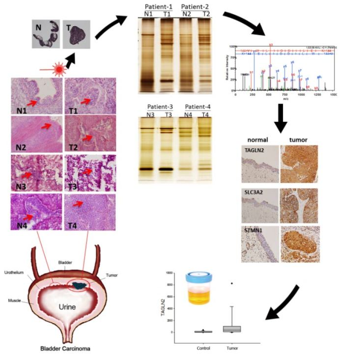Comparative Tissue Proteomics of Microdissected Specimens Reveals Novel Candidate Biomarkers of Bladder Cancer. Global medical discovery
