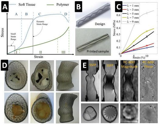 Controlling the mechanical behavior of dual-material 3D printed meta-materials for patient-specific tissue-mimicking phantoms.Global Medical Discovery
