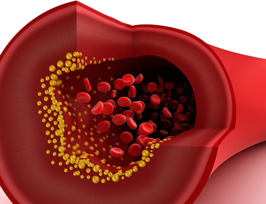 Low-density lipoprotein transport through an arterial wall under hyperthermia and hypertension conditions-Global Medical Discovery