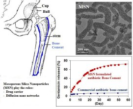 Nanostructured material formulated acrylic bone cements with enhanced drug release Global Medical Discovery