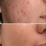 Deal With Your Troublesome Acne With These Tips