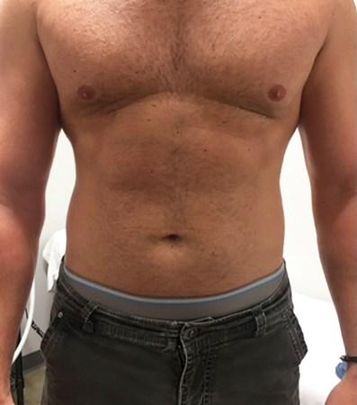 CryoSlimming abdomen before treatment