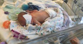 premature baby life in NICU