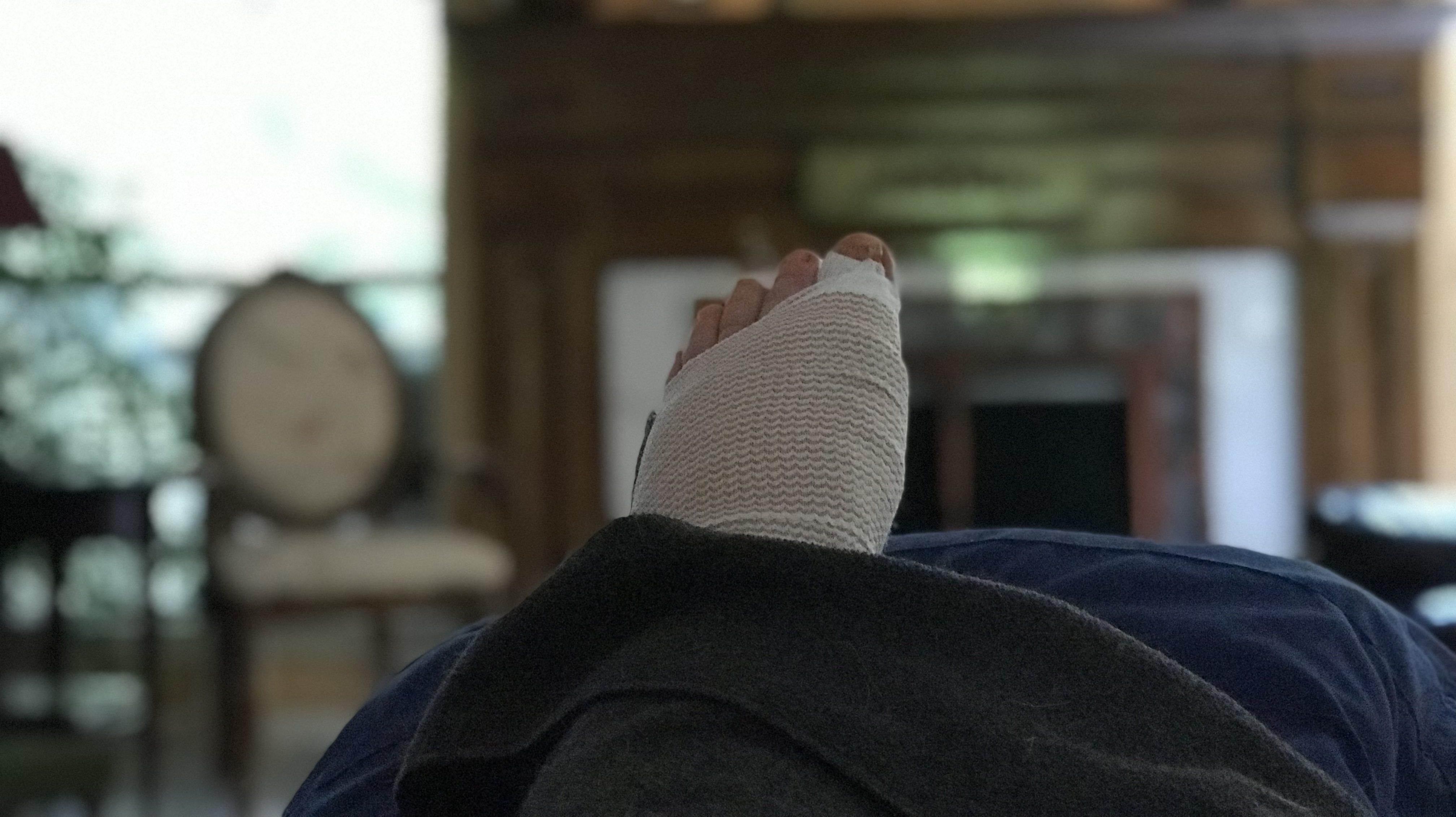 2019 Foot Surgery, Round Deux