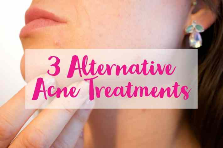 Alternative Acne Treatments