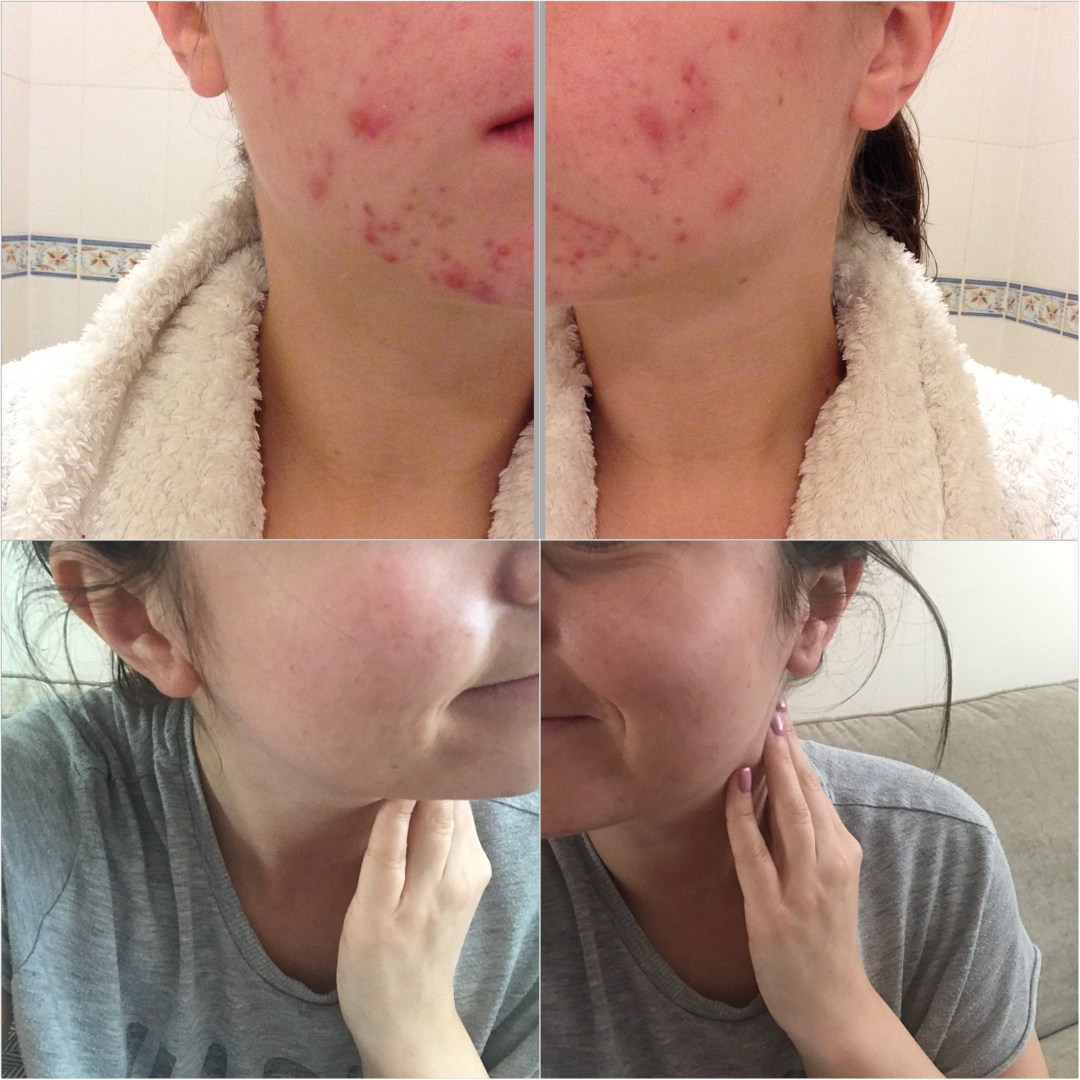My acne journey – How I cleared my skin