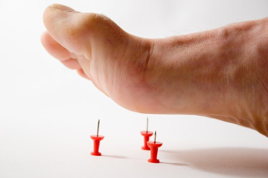 Complications of diabetes: diabetic neuropathy