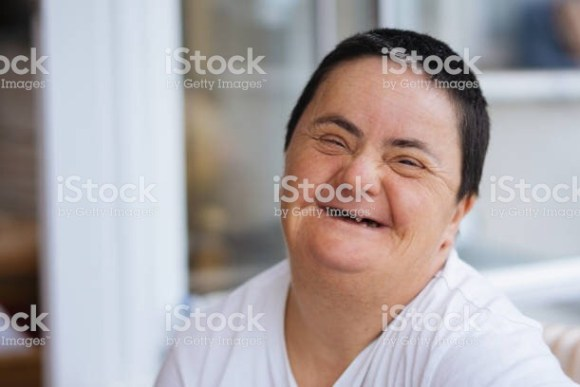 Woman with Downs Syndrome