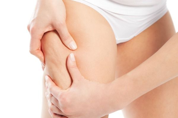 Cellulite - how to get rid of it?