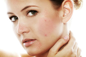 Skin with acne