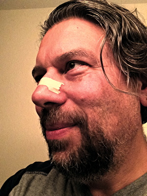 dave taylor wearing breathe right nasal strips