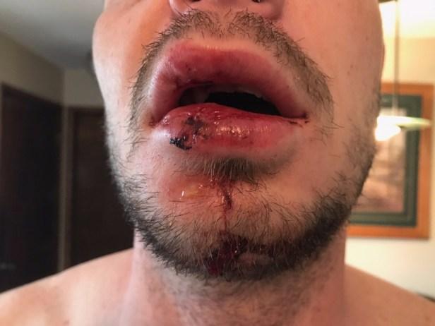 Robert George GoFundMe injuries