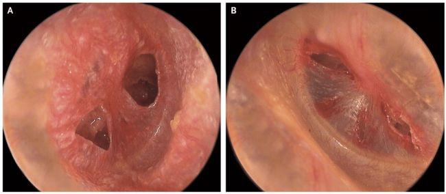 penyakit yang paling sering menyerang telinga adalah