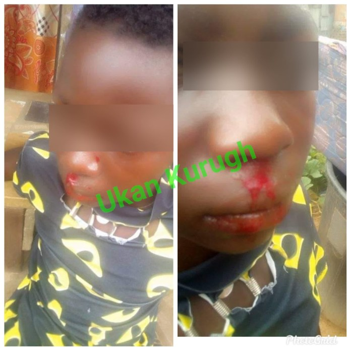 Girl allegedly battered by her stepsister in Benue (photos)