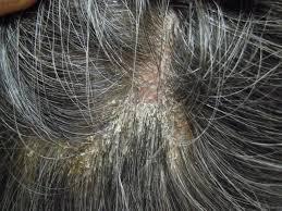 頭皮の乾癬 GON美容室
