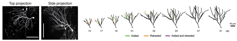 Imaging the development of newborn neurons.