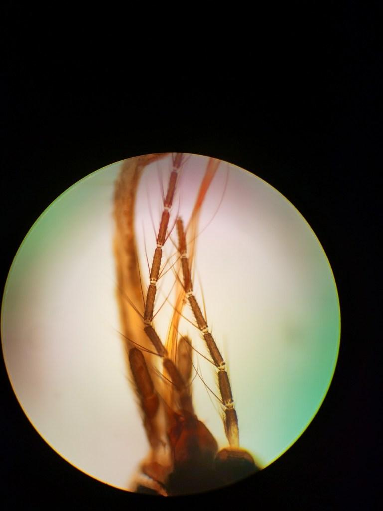 Prepared Microscope Slide with Biological Specimen, Plant Specimen, Animal Specimen, Bacterial Specimen, Microbial Specimen, Non-biological Specimen, Human Tissue Specimen, Microscope Cell Specimen, Microscopic Parasite Specimen, Educational Student Experiment Microscopic Specimen, Paramecium specimens, Sperm specimen, Blood specimen,